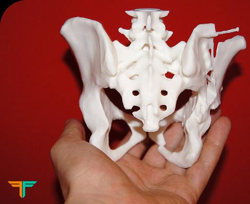 3D Druck für den medizinischen Bereich, NRW, Anschauungsmaterial ...